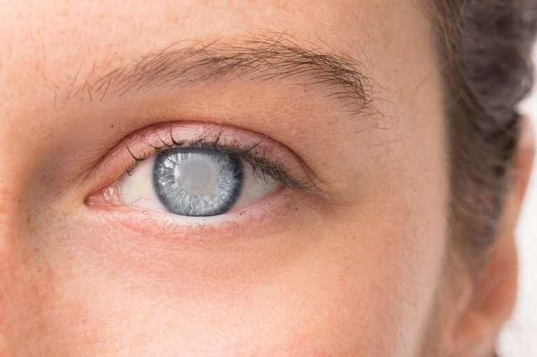oko z zaćmą lub jaskrą